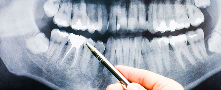 Clínica Viver & Sorrir Odonto - Tratamento de Canal
