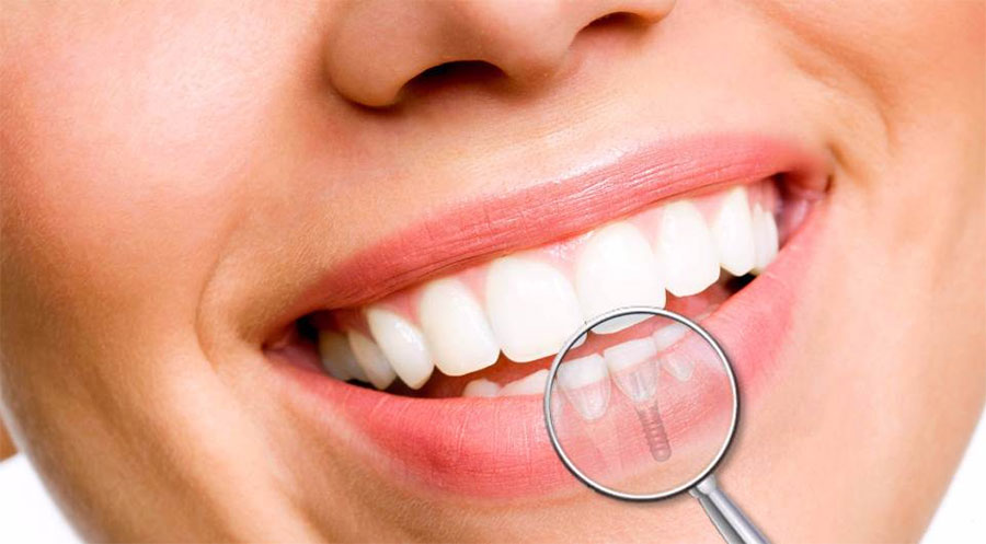 Clínica Viver & Sorrir Odonto - Implantes Dentários