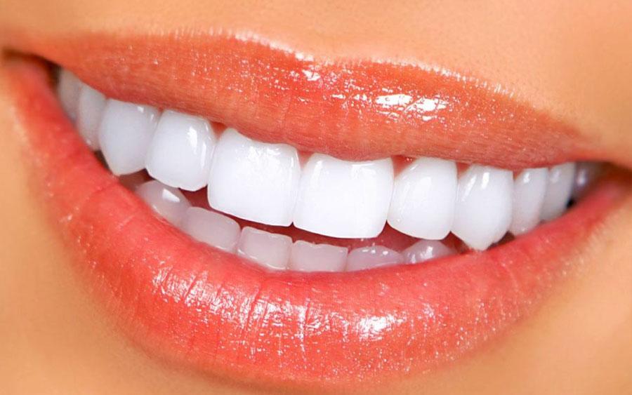 Clínica Viver & Sorrir Odonto - Lentes de contato dentais