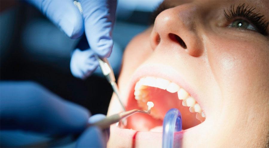 Clínica Viver & Sorrir Odonto - Restaurações dentárias
